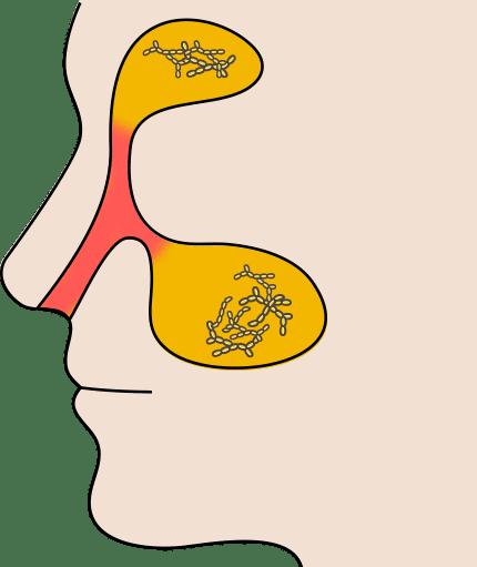 鼻水 透明 コロナ