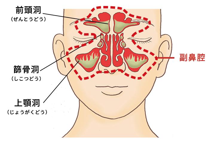 ちくのう症(蓄膿症)・副鼻腔炎とは|チクナイン -ちくのう症(蓄膿症 ...