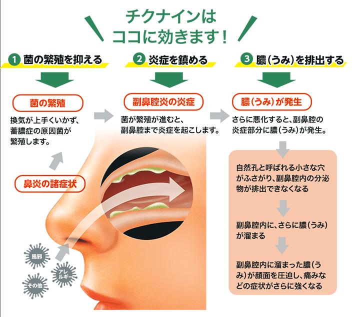 鼻くそ たまる 原因
