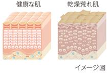 乾燥荒れ肌は基底層の細胞の乱れが原因